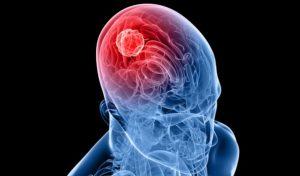 tumeur au cerveau